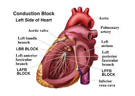 congenital heart block