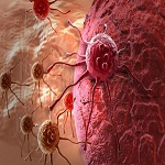 Oncology and Cancers