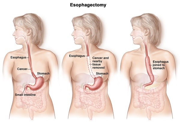 Esophageal cancer2