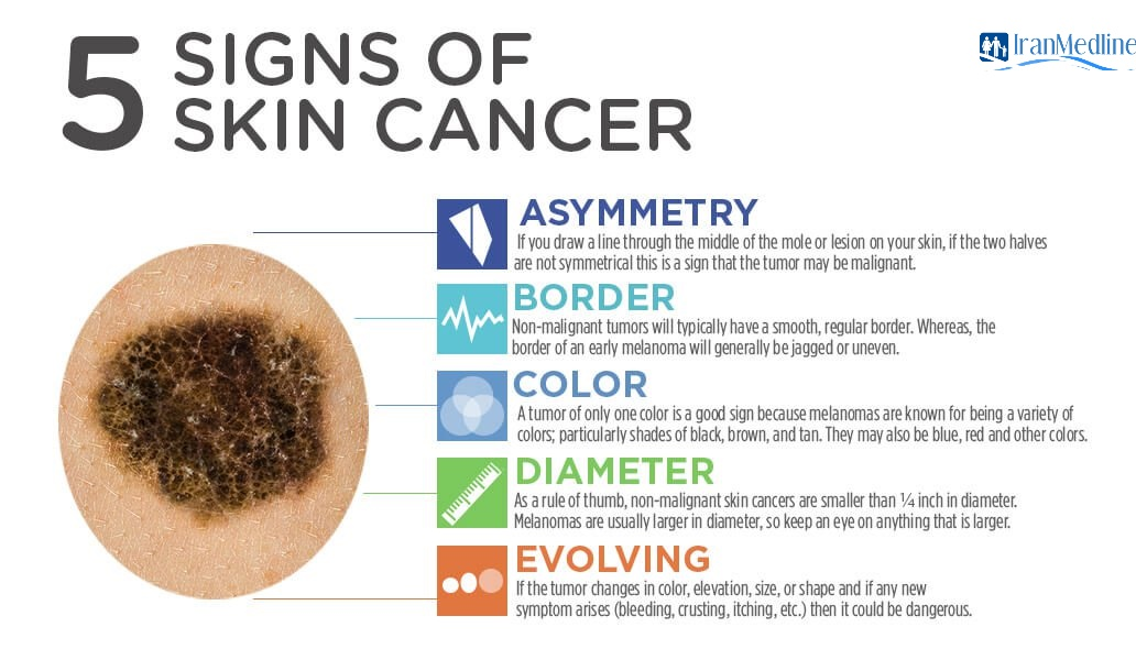 SignsOfCancer Infographic